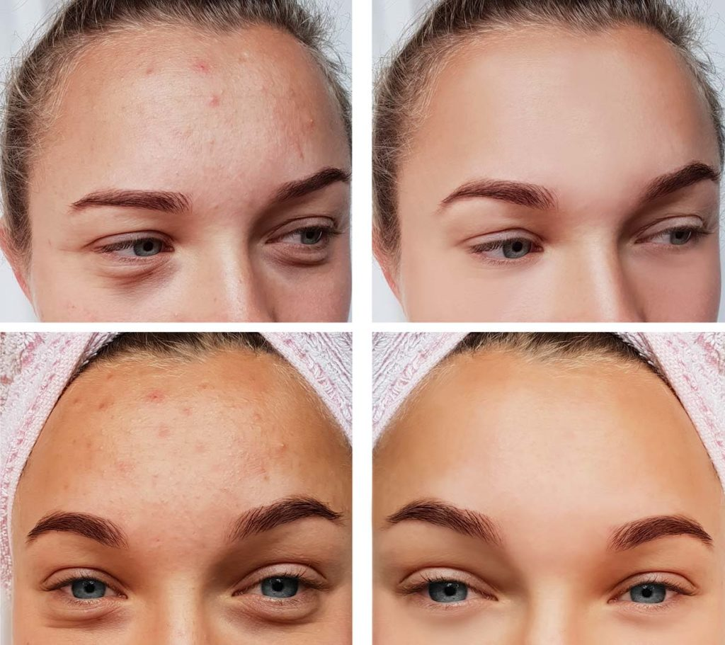 Acne Treatment in Beaumont, TX