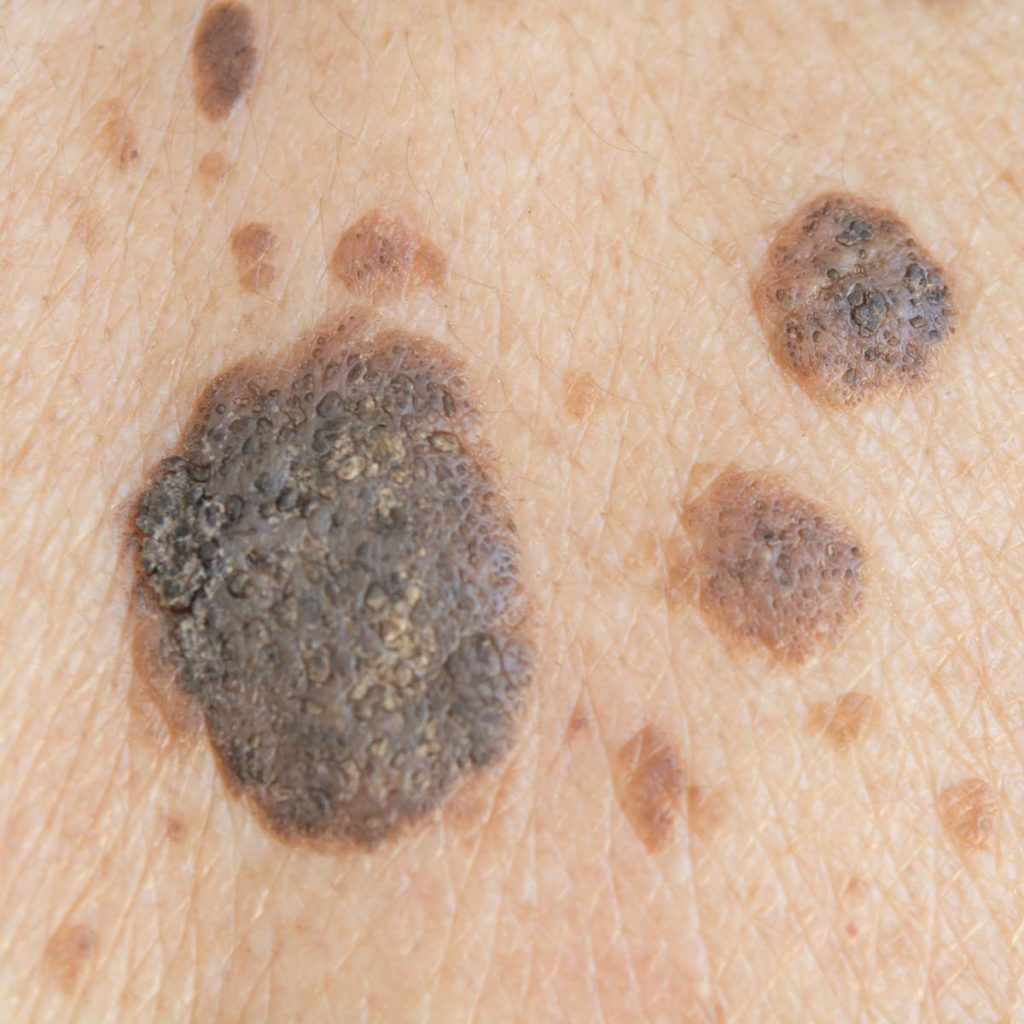 Melanoma Treatment in Beaumont, TX